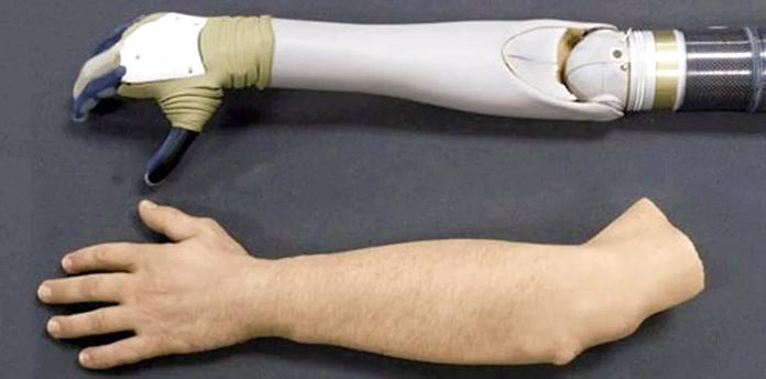 Brazos mecánicos - Brazo de prótesis