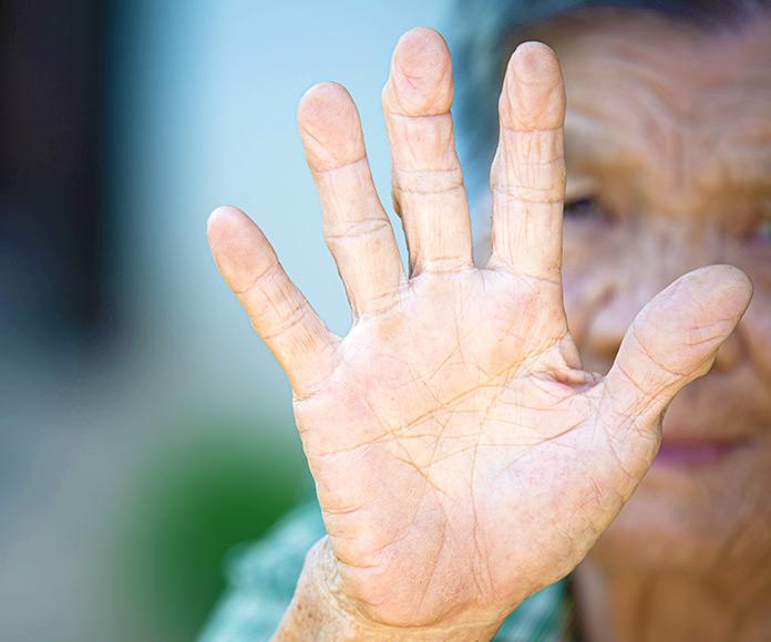 La enfermedad de Parkinson: causas, síntomas e indicaciones para vivir con ella