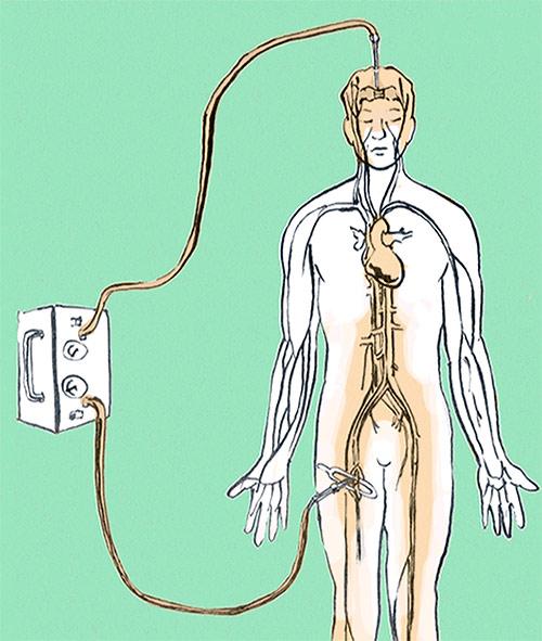 Proceso de embalsamamiento