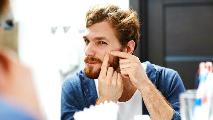 Métodos tradicionales que usa la cosmética para el tratamiento del acné
